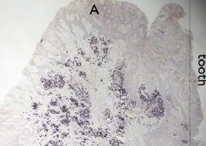 Détection par hybridation in situ, du virus Epstein Barr dans la parodontite